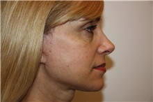 Facelift After Photo by Luis Vinas, MD, FACS; West Palm Beach, FL - Case 30769