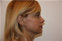 Facelift Before Photo by Luis Vinas, MD, FACS; West Palm Beach, FL - Case 30769