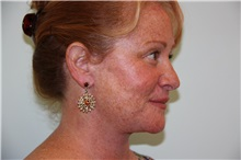 Facelift After Photo by Luis Vinas, MD, FACS; West Palm Beach, FL - Case 30775