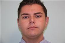 Ear Surgery After Photo by Luis Vinas, MD, FACS; West Palm Beach, FL - Case 30776