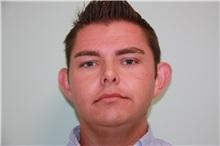 Ear Surgery Before Photo by Luis Vinas, MD, FACS; West Palm Beach, FL - Case 30776