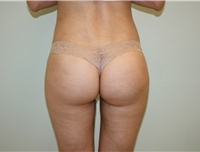 Buttock Lift with Augmentation After Photo by Luis Vinas, MD, FACS; West Palm Beach, FL - Case 32096
