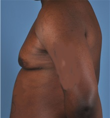 Male Breast Reduction After Photo by Thomas Hubbard, MD; Virginia Beach, VA - Case 32811
