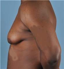 Male Breast Reduction Before Photo by Thomas Hubbard, MD; Virginia Beach, VA - Case 32811