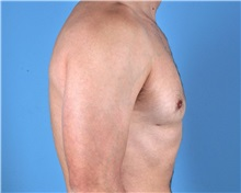 Male Breast Reduction After Photo by Thomas Hubbard, MD; Virginia Beach, VA - Case 32812