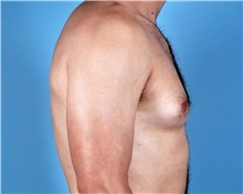 Male Breast Reduction Before Photo by Thomas Hubbard, MD; Virginia Beach, VA - Case 32812