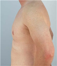 Male Breast Reduction After Photo by Thomas Hubbard, MD; Virginia Beach, VA - Case 32813