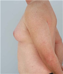 Male Breast Reduction Before Photo by Thomas Hubbard, MD; Virginia Beach, VA - Case 32813