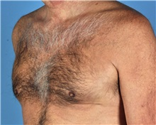 Male Breast Reduction After Photo by Thomas Hubbard, MD; Virginia Beach, VA - Case 32816