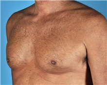 Male Breast Reduction Before Photo by Thomas Hubbard, MD; Virginia Beach, VA - Case 32816