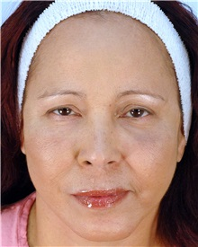 Facelift After Photo by Thomas Hubbard, MD; Virginia Beach, VA - Case 32817