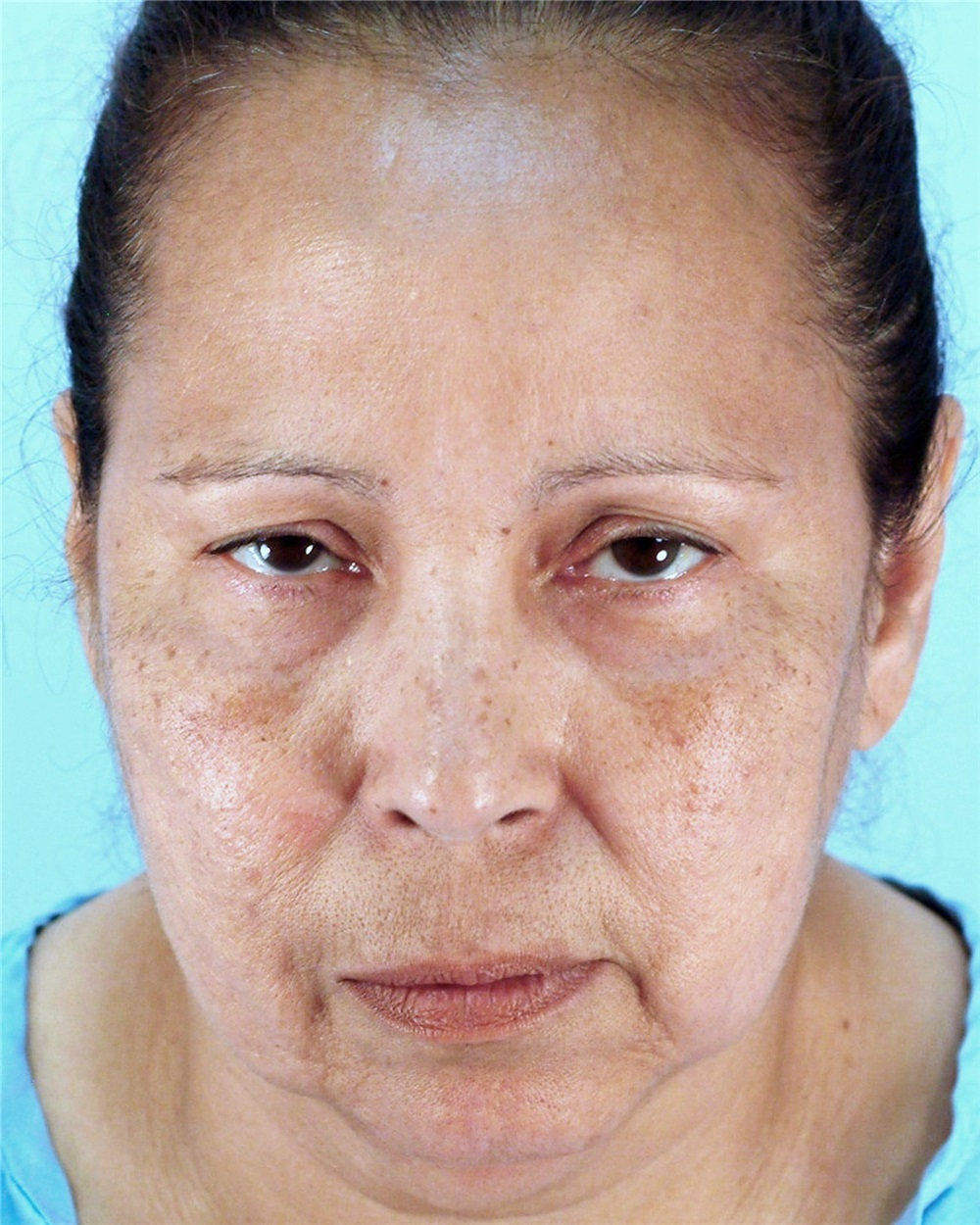 Facelift Before And After Photos By