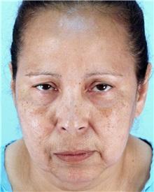 Facelift Before Photo by Thomas Hubbard, MD; Virginia Beach, VA - Case 32817