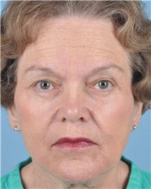 Facelift After Photo by Thomas Hubbard, MD; Virginia Beach, VA - Case 32818