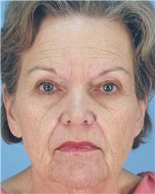 Facelift Before Photo by Thomas Hubbard, MD; Virginia Beach, VA - Case 32818
