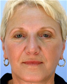 Facelift After Photo by Thomas Hubbard, MD; Virginia Beach, VA - Case 32820