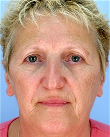 Facelift Before Photo by Thomas Hubbard, MD; Virginia Beach, VA - Case 32820