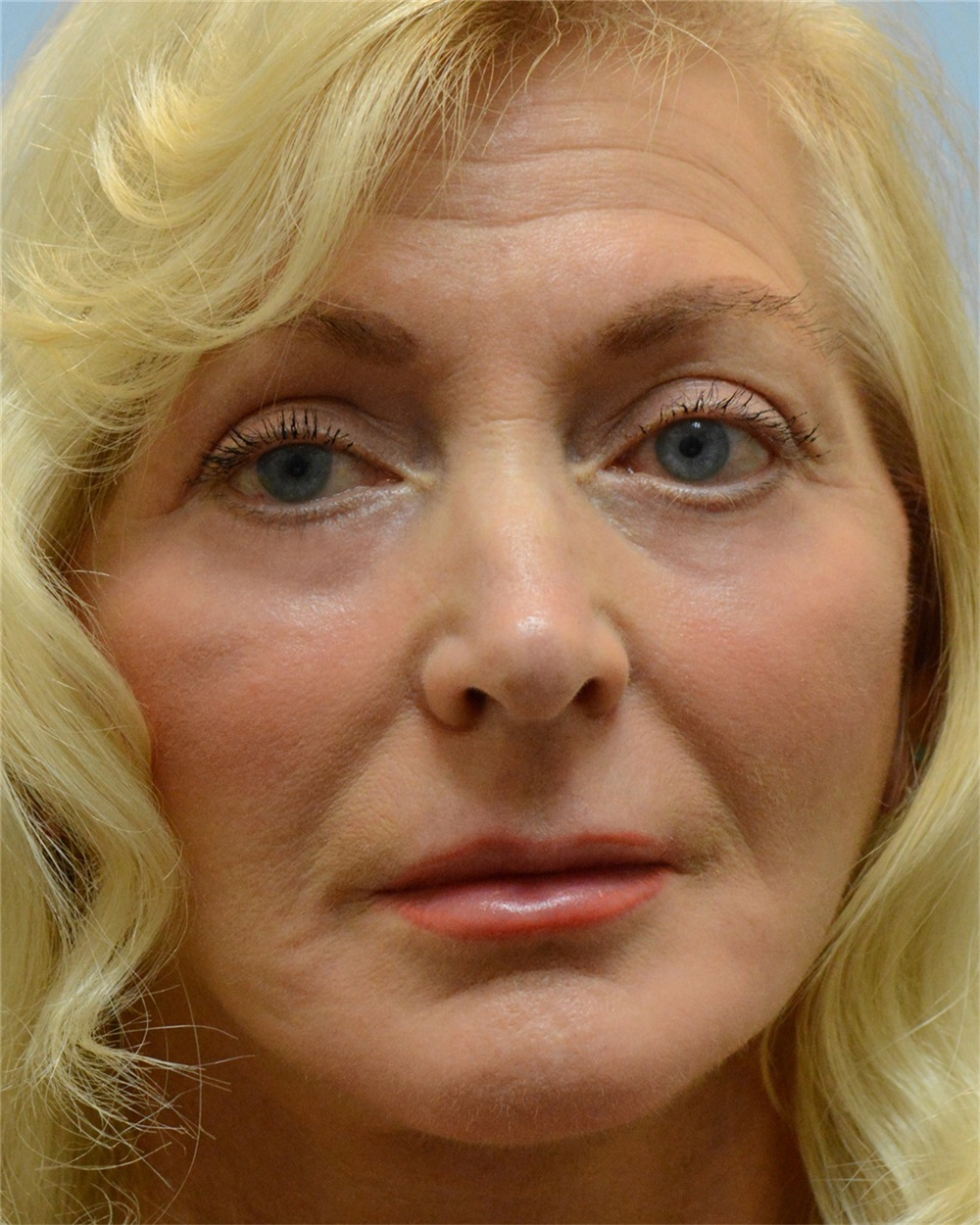 Facelift After Photo By Thomas Hubbard Md Virginia Beach Va Case 32821