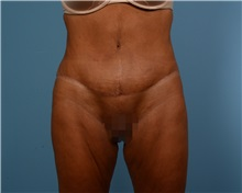 Tummy Tuck After Photo by Thomas Hubbard, MD; Virginia Beach, VA - Case 33081
