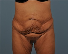Tummy Tuck Before Photo by Thomas Hubbard, MD; Virginia Beach, VA - Case 33081