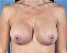 Breast Lift After Photo by Thomas Hubbard, MD; Virginia Beach, VA - Case 33553