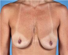 Breast Lift Before Photo by Thomas Hubbard, MD; Virginia Beach, VA - Case 33553