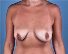 Breast Lift Before Photo by Thomas Hubbard, MD; Virginia Beach, VA - Case 33558