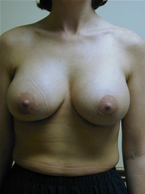 Breast Augmentation After Photo by Randy Proffitt, MD; Mobile, AL - Case 21804