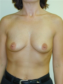 Breast Augmentation Before Photo by Randy Proffitt, MD; Mobile, AL - Case 21804