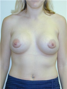 Breast Augmentation After Photo by Randy Proffitt, MD; Mobile, AL - Case 21805