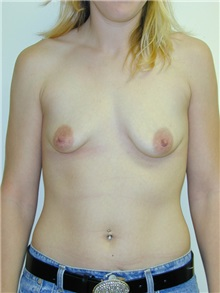 Breast Augmentation Before Photo by Randy Proffitt, MD; Mobile, AL - Case 21805