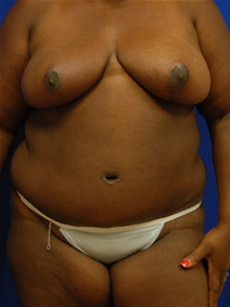 Breast Reduction After Photo by Randy Proffitt, MD; Mobile, AL - Case 21809
