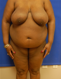 Breast Reduction Before Photo by Randy Proffitt, MD; Mobile, AL - Case 21809