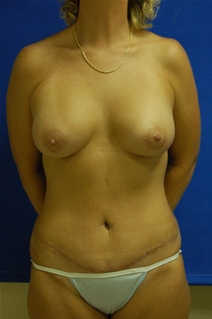 Breast Augmentation After Photo by Randy Proffitt, MD; Mobile, AL - Case 21814