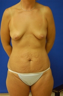 Breast Augmentation Before Photo by Randy Proffitt, MD; Mobile, AL - Case 21814