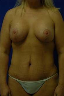 Breast Lift After Photo by Randy Proffitt, MD; Mobile, AL - Case 21817