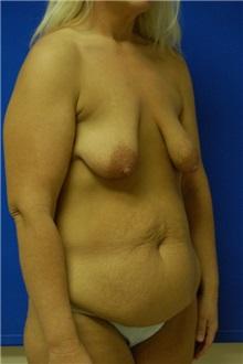 Breast Lift Before Photo by Randy Proffitt, MD; Mobile, AL - Case 21817