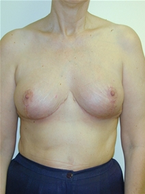 Breast Reduction After Photo by Randy Proffitt, MD; Mobile, AL - Case 21824