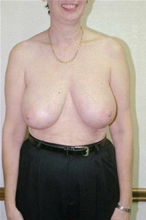 Breast Reduction Before Photo by Randy Proffitt, MD; Mobile, AL - Case 21824