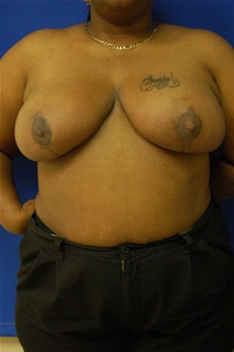 Breast Reduction After Photo by Randy Proffitt, MD; Mobile, AL - Case 21827