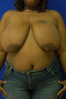 Breast Reduction Before Photo by Randy Proffitt, MD; Mobile, AL - Case 21827