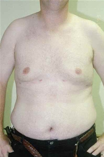 Male Breast Reduction After Photo by Randy Proffitt, MD; Mobile, AL - Case 21833
