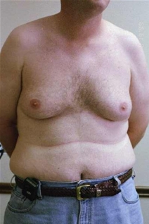 Male Breast Reduction Before Photo by Randy Proffitt, MD; Mobile, AL - Case 21833