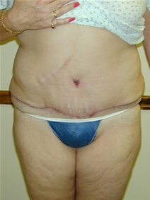 Tummy Tuck After Photo by Randy Proffitt, MD; Mobile, AL - Case 21838