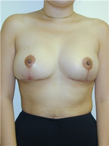 Breast Reduction After Photo by Randy Proffitt, MD; Mobile, AL - Case 21847