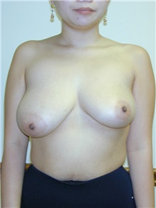 Breast Reduction Before Photo by Randy Proffitt, MD; Mobile, AL - Case 21847