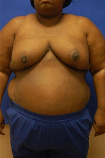 Breast Reduction After Photo by Randy Proffitt, MD; Mobile, AL - Case 21852