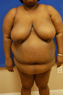 Breast Reduction Before Photo by Randy Proffitt, MD; Mobile, AL - Case 21852