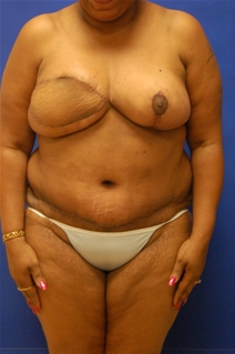 Breast Reduction After Photo by Randy Proffitt, MD; Mobile, AL - Case 21858