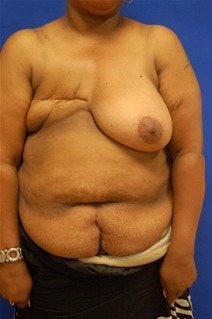 Breast Reduction Before Photo by Randy Proffitt, MD; Mobile, AL - Case 21858